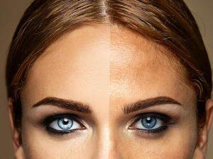 A propos de la pigmentation de la peau, pourquoi cela se produit-il ?